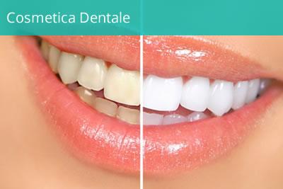 servizi-cosmetica-dentale