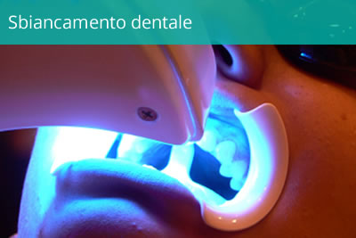 servizi-sbiancamento-dentale